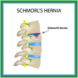 Hernia Schmorl. Intervertebral disc. Side view. Spine. Infographics Vector illustration on isolated background Stock Photography
