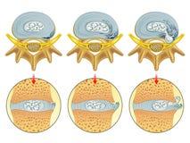 Herniated δίσκος διανυσματική απεικόνιση