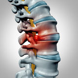 Herniated Disk Stock Images