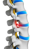 Herniated disk Royalty Free Stock Photography