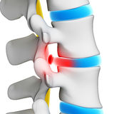 Herniated disk Stock Image