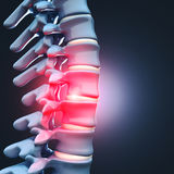 Herniated disk human spinal Royalty Free Stock Images