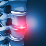 Herniated disk human spinal Royalty Free Stock Photos
