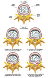 Herniated diskett vektor illustrationer