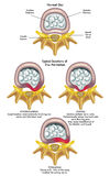 Herniated diskett royaltyfri illustrationer