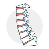 Herniated intervertebral disc icon Royalty Free Stock Photos