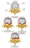 Herniated schijf royalty-vrije illustratie