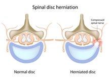 Herniation espinal do disco Fotografia de Stock