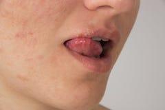 Herpès avec le pus sur les lèvres d'une jeune fille et les boutons sur le f Images stock