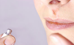 Herpes Royalty Free Stock Photo