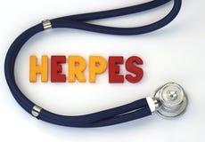 herpes Fotografía de archivo libre de regalías