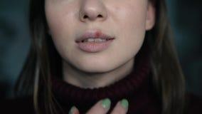 Herpes auf den Lippen, Teil eines Frau ` s Gesichtes mit dem Finger auf Lippen mit Herpes, Schönheitskonzept stock video footage