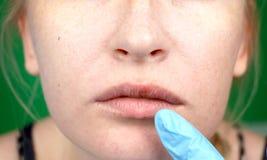 Herpes auf den Lippen, Teil eines Frau ` s Gesichtes mit dem Finger auf Lippen mit Herpes, Schönheitskonzept stockbild