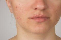 Herpes com pus nos lábios de uma moça e espinhas no f Imagem de Stock Royalty Free