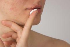 Herpes con pus en boca de una chica joven y espinillas en la f Fotos de archivo libres de regalías