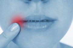 Herpes dolorido, mostrado rojo Imagen de archivo libre de regalías