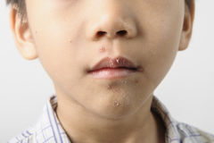 Herpes on kid mouth become dry Royalty Free Stock Images