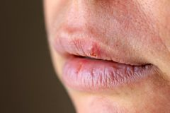 Herpes on the lip close up macro.  royalty free stock images