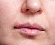 Herpes on the lip close up macro.  royalty free stock photos
