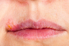 Herpes on the lip close up macro Stock Photo