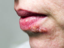 Herpes on lip. Detail of Herpes on lip of woman stock images