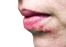 Herpes on the lip. Herpes of the lips of the woman on white background. Close up royalty free stock photography