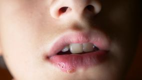 Herpes on the lips of a boy. herpes. lip treatment. 4k, slow-motion shooting, copy space.  stock footage
