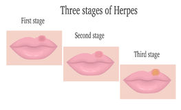 Herpes on the lips Stock Photo