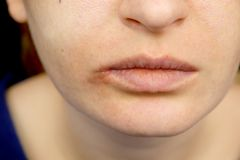 Herpes on the lips: a woman with a cold and the herpes virus is examined by a dermatologist and infectious disease specialist. A woman with a cold and the herpes royalty free stock photography