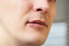 Herpes on the lips. Wound from herpes on the lips Royalty Free Stock Images