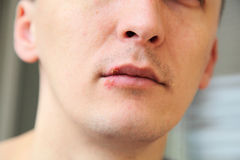 Herpes on the lips royalty free stock photos