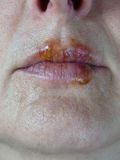 Herpes mouth sores lips virus Royalty Free Stock Images