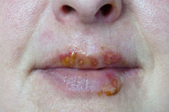 Herpes mouth virus wounds Royalty Free Stock Photo