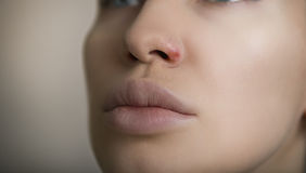 Herpes on the nose - young woman with herpes on her nose Stock Image