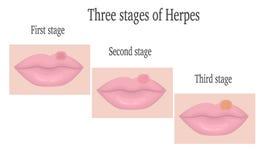 Herpes op de lippen Stock Foto