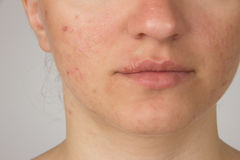 Herpes with pus on the lips of a young girl and pimples on the f. Herpes sore with pus on the lips of a young girl and pimples on the face Royalty Free Stock Image