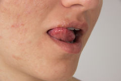 Herpes with pus on the lips of a young girl and pimples on the f Stock Images