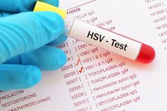 Herpes simplex virus test. Blood sample with requisition form for herpes simplex virus test royalty free stock photos