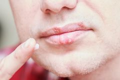 Herpes simplex virus infection. Lips treatment by cream. Male face. royalty free stock photo
