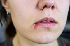 Herpes on young woman lips. Close up royalty free stock images