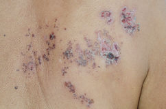 Herpes zoster. Shingles disease (herpes zoster) with a circle of blisters Royalty Free Stock Image
