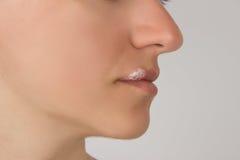 Herpespijnlijke plek met etters op de lippen van het jonge mooie meisje en stock fotografie