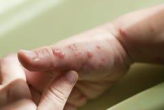Herpeszoster i en barnhand. Arkivfoton