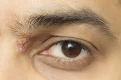 Herpetic eye disease - herpes zoster ophthalmicus. Herpes zoster ophthalmicus eye herpetic cold sore Stock Photo