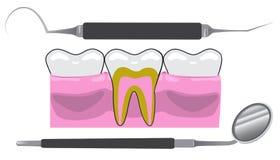 Herramientas del dentista Imagen de archivo libre de regalías