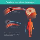 Hersenemboliebehandeling vector illustratie
