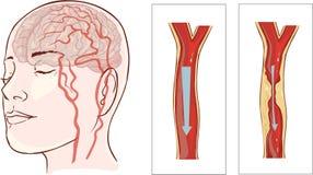 Hersenenslag Herseninfarct stock illustratie