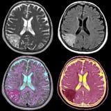 Hersenenslag, MRI Royalty-vrije Stock Afbeelding