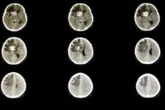 Hersenentumor stock foto