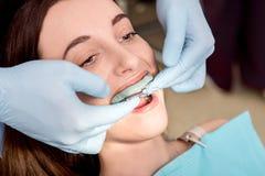 Herstellung des Impressums von Zähnen mit zahnmedizinischem capa Lizenzfreie Stockfotos